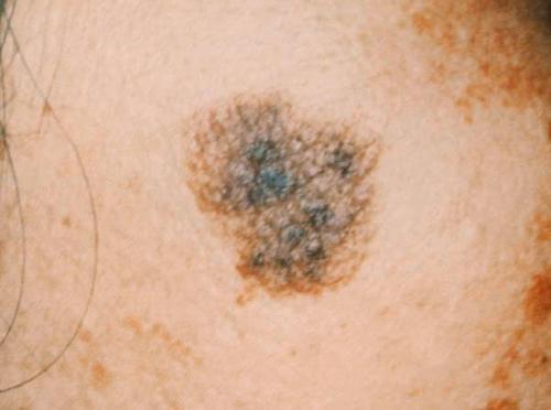 いぼ ウイルス 液体 窒素 性